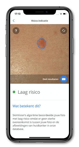 Skinvision, Uw Zorg online, app,